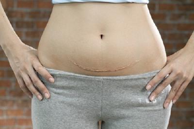 Mẹo giảm mỡ bụng sau sinh mổ nhanh và hiệu quả nhất - không phải ai cũng biết